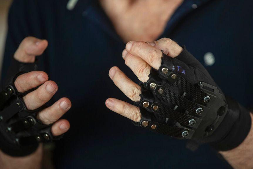 βιονικά γάντια